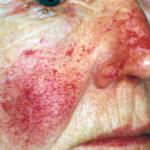 visage femme avec lésions vasculaires