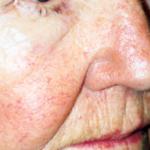 Visage femme après traitement des lésions vasculaires