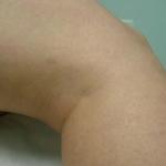 Jambe femme après traitement vasculorites