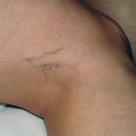 Jambes femme vasculorités