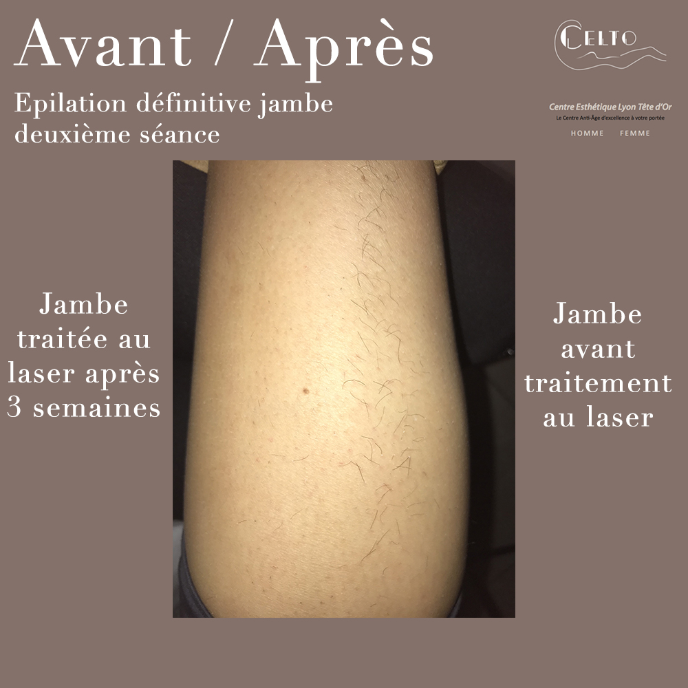 epilation definitive ventre