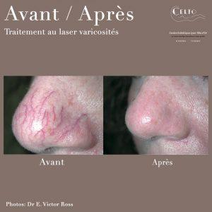 Avant/Après traitement au laser varicosités nez